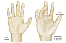 chirurgie de la main, Dupuytren