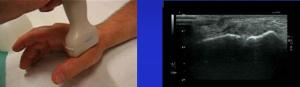 chirurgie de la main, Paris