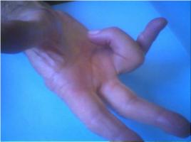 doigt à ressaut, chirurgie de la main